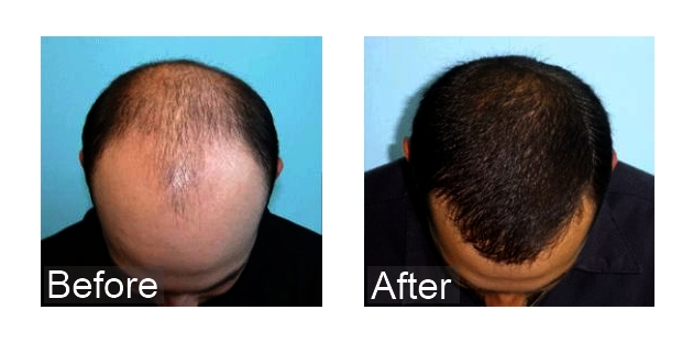 can hair regrow after chemotherapy