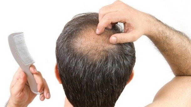 regrow hair bald spots