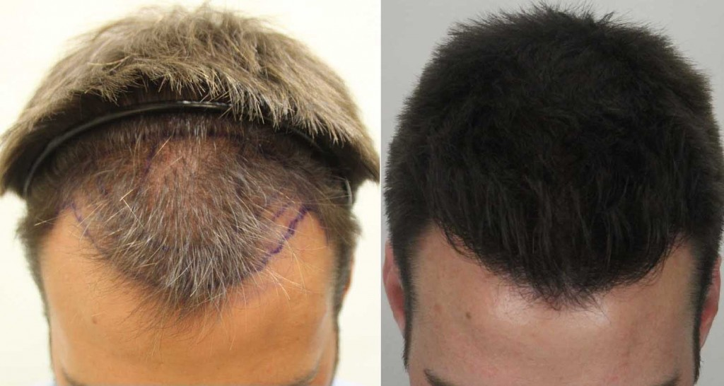 regrow hair with laser