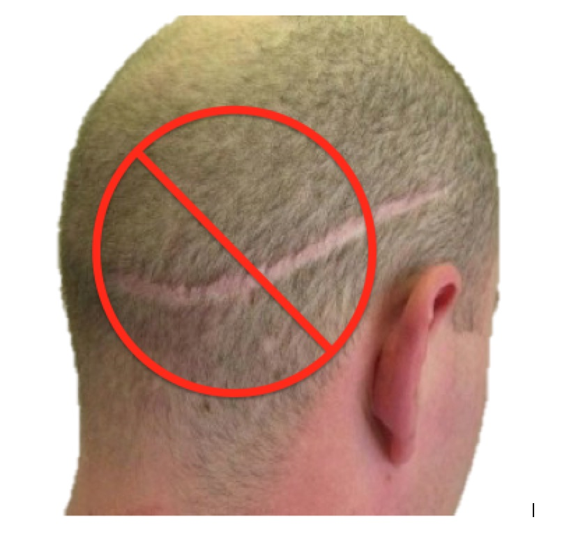 how to regrow hair on scalp
