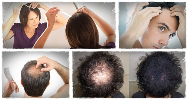 can bald regrow hair