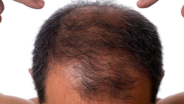 can you regrow lost hair naturally