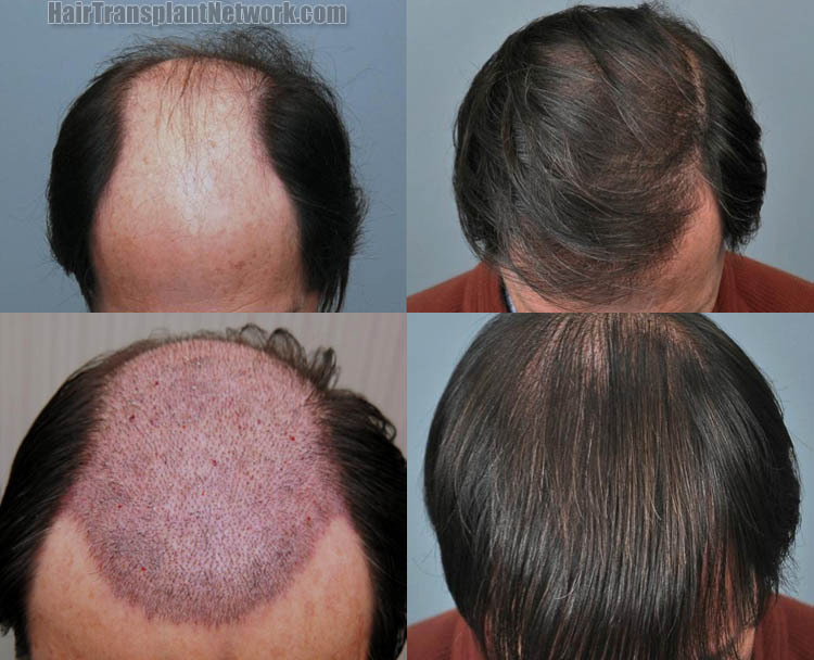 home remedies to regrow hair on bald patches