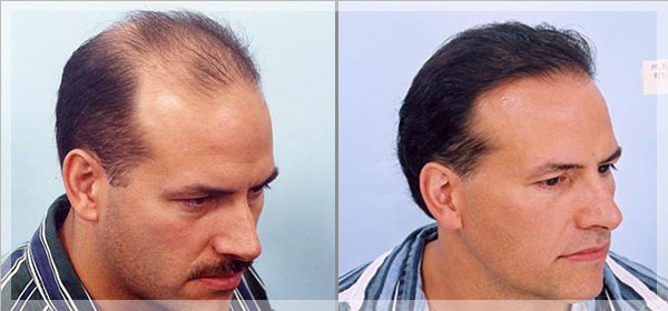 iron supplements regrow hair