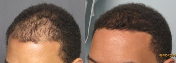 Propecia bald spot