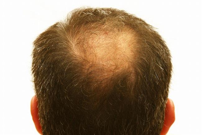 Regrow Dead Hair Follicles