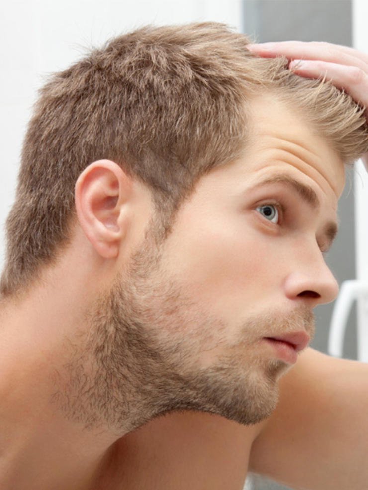 how to regrow receding hairline