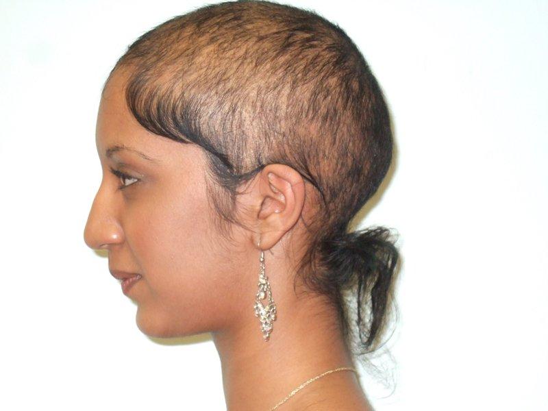 Dutasteride Regrow Hair Regrow Hair