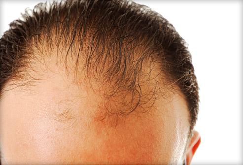how to naturally regrow lost hair