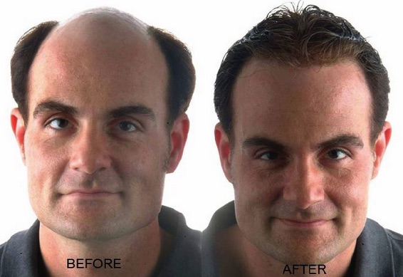 is it possible to regrow hair on your head