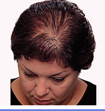 home remedies for regrowing thinning hair